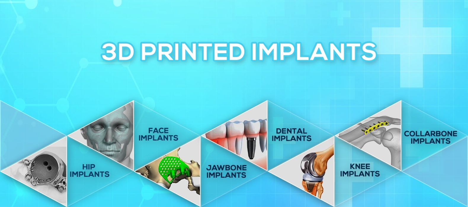 medical-implants-replacements